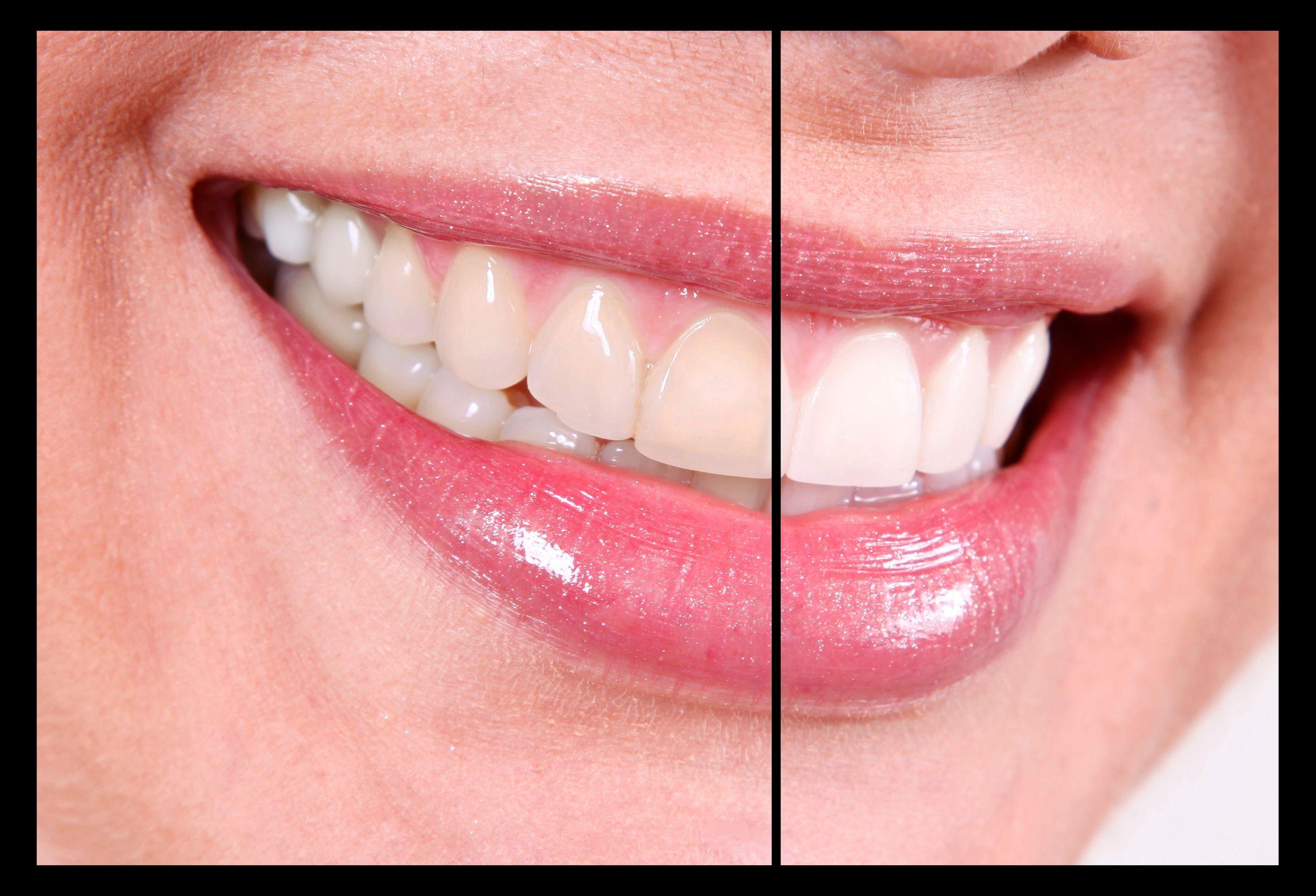 Dr Jared Kenwood And Yardley Pa Dental Care